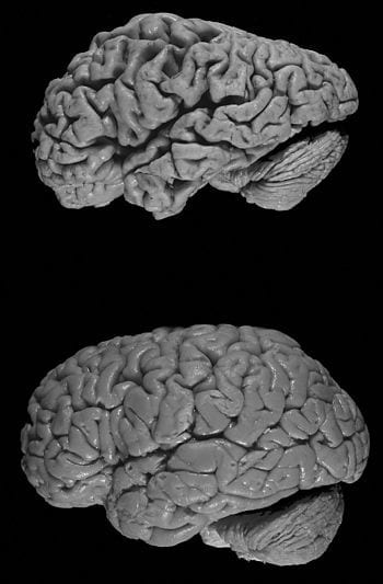Healthy brain (bottom) versus brain of a donor with Alzheimer's disease. Notable is the