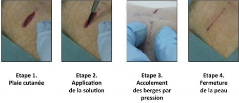 "Phase 1 Skin injury Phase 2 Application of the solution Phase 3 Using pressure to hold the edges together Phase 4 Skin closure Illustration of the first experiment conducted by the resear chers on rats: a deep wound is repaired by applying the aqueous nanoparticle solution. The wound closes in thirty seconds. © ""Matière Molle et Chimie"" Laboratory (CNRS/ESPCI Paris Tech)"