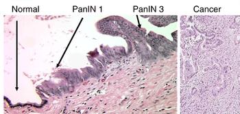 Micrographs of normal pancreas, pancreatic intraepithelial neoplasia (precursors to pancreatic carcinoma) and pancreatic carcinoma. H&E stain. (Photo credit: Wikipedia)