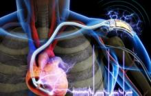 The first demonstration of a self-powered cardiac pacemaker