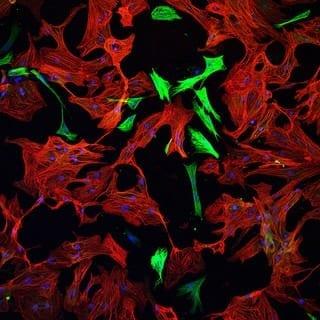Heart cells (Photo credit: arboreus)