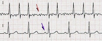 Scheme of atrial fibrillation (top) and sinus rhythm (bottom). The purple arrow indicates a P wave, which is lost in atrial fibrillation. (Photo credit: Wikipedia)
