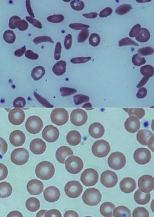 Top image: The magnified blood of a patient with severe sickle cell disease. Bottom image: The blood of a patient with sickle cell disease after undergoing the partial transplant. Credit: NIH Molecular and Clinical Hematology Branch