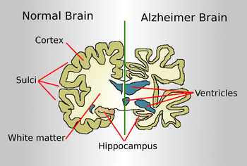 English: Drawing comparing how a brain of an Alzheimer disease patient is affected to a normal brain (Photo credit: Wikipedia)