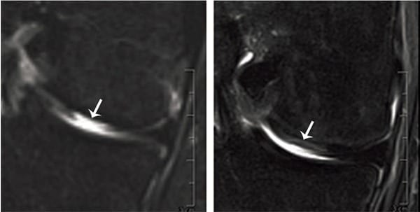 Articular cartilage replaced: MRI of defect tissue site before (left) and four months after (right) transplantation (Fig: University of Basel, Department of Biomedicine)