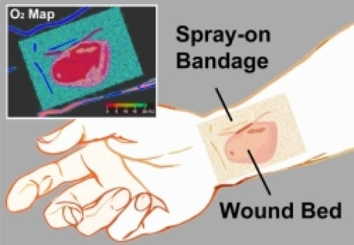 The transparent liquid bandage displays a quantitative, oxygenation-sensitive colormap that can be easily acquired using a simple camera or smartphone. Credit: Li/Wellman Center for Photomedicine.
