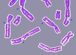DNA damage resulting in multiple broken chromosomes (Photo credit: Wikipedia)
