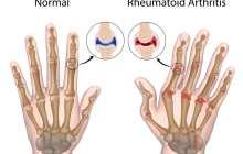 New effective, safe and cheap treatment strategy for rheumatoid arthritis