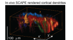 New High-Speed 3D Microscope—SCAPE—Gives Deeper View of Living Things