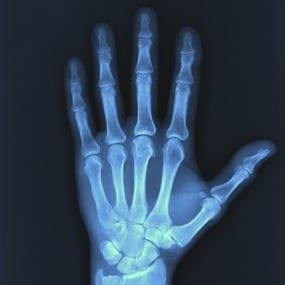 Arthritis cure is on the way: Scientists make new breakthrough using embryonic stem cells