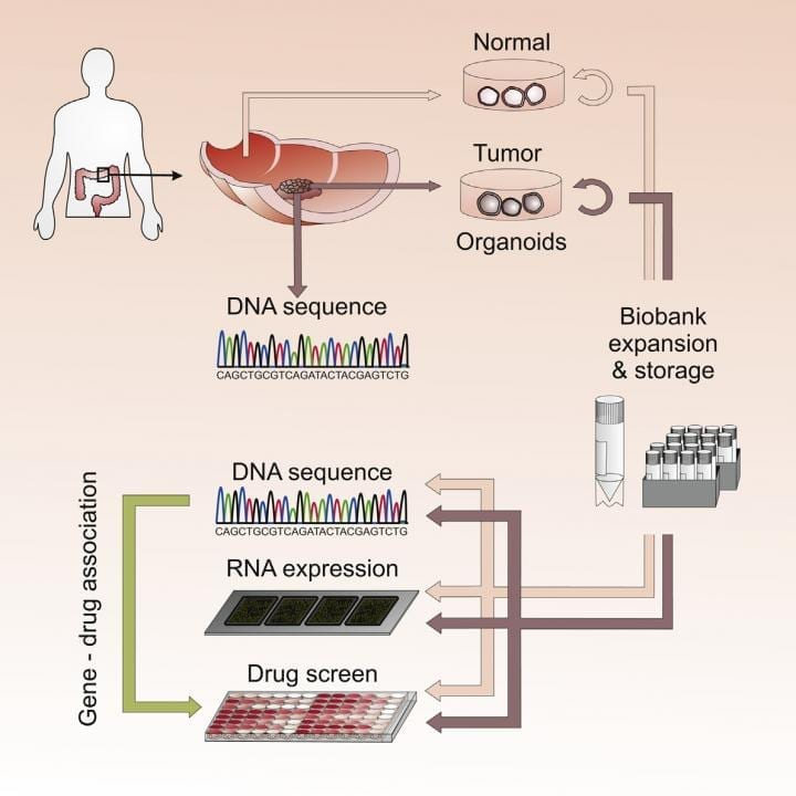 3-D organoid cultures derived from healthy and tumor tissue from colorectal cancer patients are used for a high throughput drug screen to identify genedrug associations that may facilitate personalized therapy. CREDIT van de Wetering et al./Cell 2015