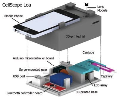A schematic of the CellScope Loa device, a mobile phone-based video microscope. The device includes a 3D-printed case housing simple optics, circuitry and controllers to help process the sample of blood. CellScope Loa can quantify levels of the Loa loa parasitic worm directly from whole blood in less than 3 minutes. (Image by Mike D'Ambrosio and Matt Bakalar, Fletcher Lab, UC Berkeley)