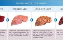 Researchers Test Bioartificial Liver Device to Treat Acute Liver Failure