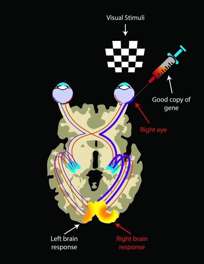 Being a bilateral disease, visual pathways in LCA2 patients on both sides are atrophied due to lack of visual inputs. After reinstating vision by injection of good copies of the gene, visual pathways from the injected area to the brain strengthen over time. Hence there is an asymmetrical brain response showing much larger activations in the retina-brain pathway from the injected eye when each eye is exposed to visual stimuli. Illustrated by Elena Nikonova