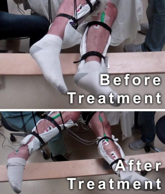 This image shows the range of voluntary movement prior to receiving stimulation compared to movement after receiving stimulation, physical conditioning, and buspirone. The subject's legs are supported so that they can move without resistance from gravity. The electrodes on the legs are used for recording muscle activity. CREDIT Edgerton lab/UCLA