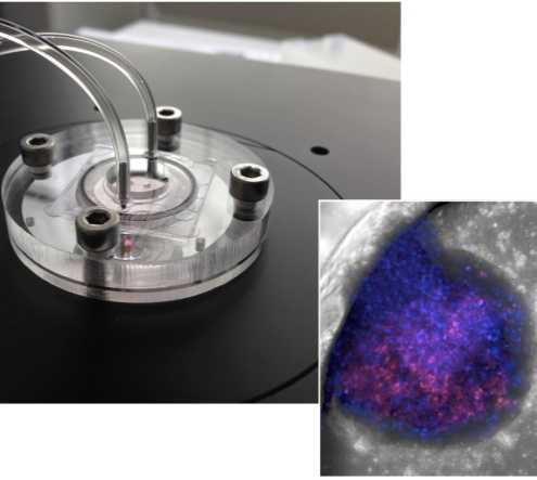 Liver-on-chip device and microscopic image of bionic liver (Photo credit: Yaakov Nahmias / Hebrew University)