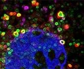 Immune gene prevents Parkinson's disease and dementia