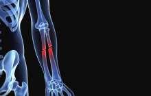 Biodegradable implant could help heal broken bones
