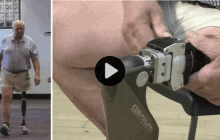 New Snap on Limbs to Change Lives of Amputees