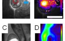Guided ultrasound plus nanoparticle chemotherapy cures tumors in mice