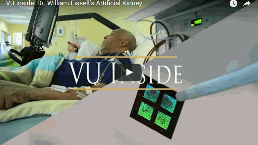 First Implantable Artificial Kidney with a Microchip