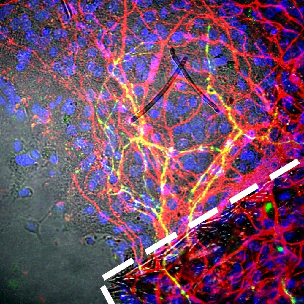 Photo: Neal K. Bennett, Moghe Laboratory, Rutgers Biomedical Engineering. This image shows that reprogrammed human neurons grown on 3-D scaffolds (within the white dash line) and then transplanted onto brain tissue (red), extended out (yellow lines) and integrated.