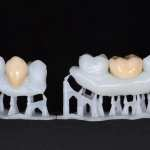 Additive manufacturing: A printed smile