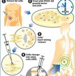Medical scientists develop 'game changing' stem cell repair system