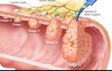 Researchers block common colon cancer tumor type in mice - clinical trial starts in August