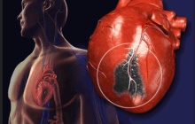 After the heart attack: Injectable gels could prevent future heart failure