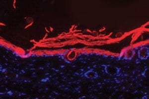 An immunofluorescence image shows regenerated dermal tissue (in pink) in wounds treated with Ameer's bandage.