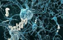 Antibody Reduces Harmful Brain Amyloid Plaques in Alzheimer's Patients