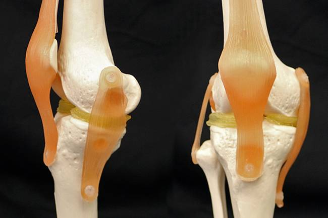 Another step towards 3-D printed replacement knee parts that are custom-shaped to each patient's anatomy