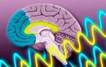 A closed-loop acoustic stimulation brainwave technology significantly reduced symptoms in people suffering from PTSD