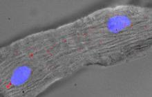 Self-healing heart cells get closer with Singheart
