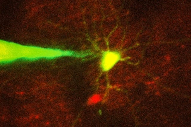 Specific neurons can be monitored by a robotic system with great success