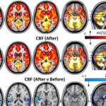 Psilocybin may reset key brain circuits to reduce depression