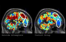 Brain imaging can identify individuals with suicidal thoughts