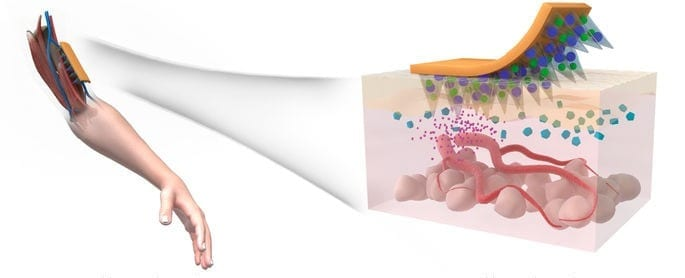 Dissolvable microneedle skin patch for type 2 diabetes