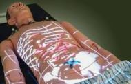 Augmented reality lets clinicians see patients' internal anatomy displayed right on the body