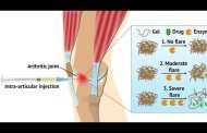 A hydrogel treatment for inflammatory arthritis?