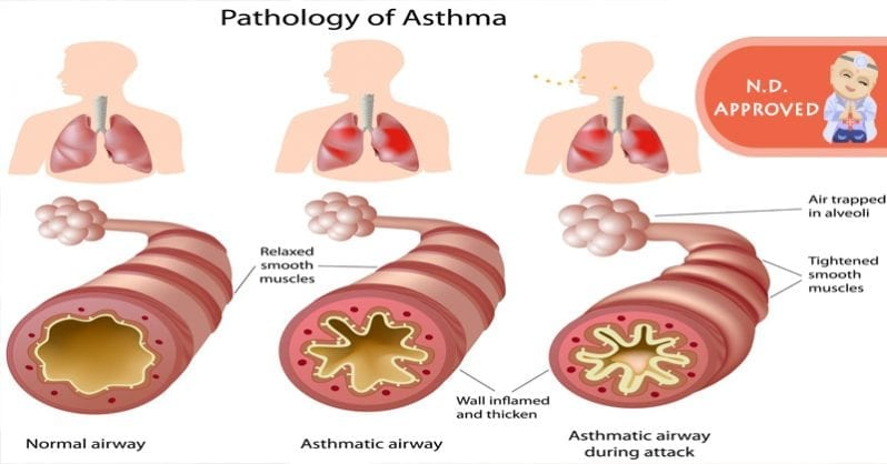 Defeating asthma attacks by going small