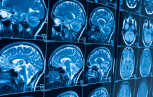 Using artificial intelligence to predict outcomes for people at risk of psychosis and depression