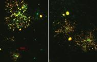 Investigating abnormalities in nerve connections in the brain could lead to new treatments for schizophrenia