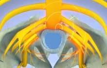 Relieving acute back pain and sciatica with pulsed radiofrequency