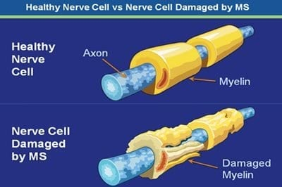 Researchers collaborate on potential game-changer for people with multiple sclerosis