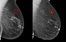 New AI deep learning model can detect future breast cancer risk better than current models