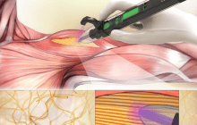 Treating musculoskeletal injuries with a handheld 3D bioprinter