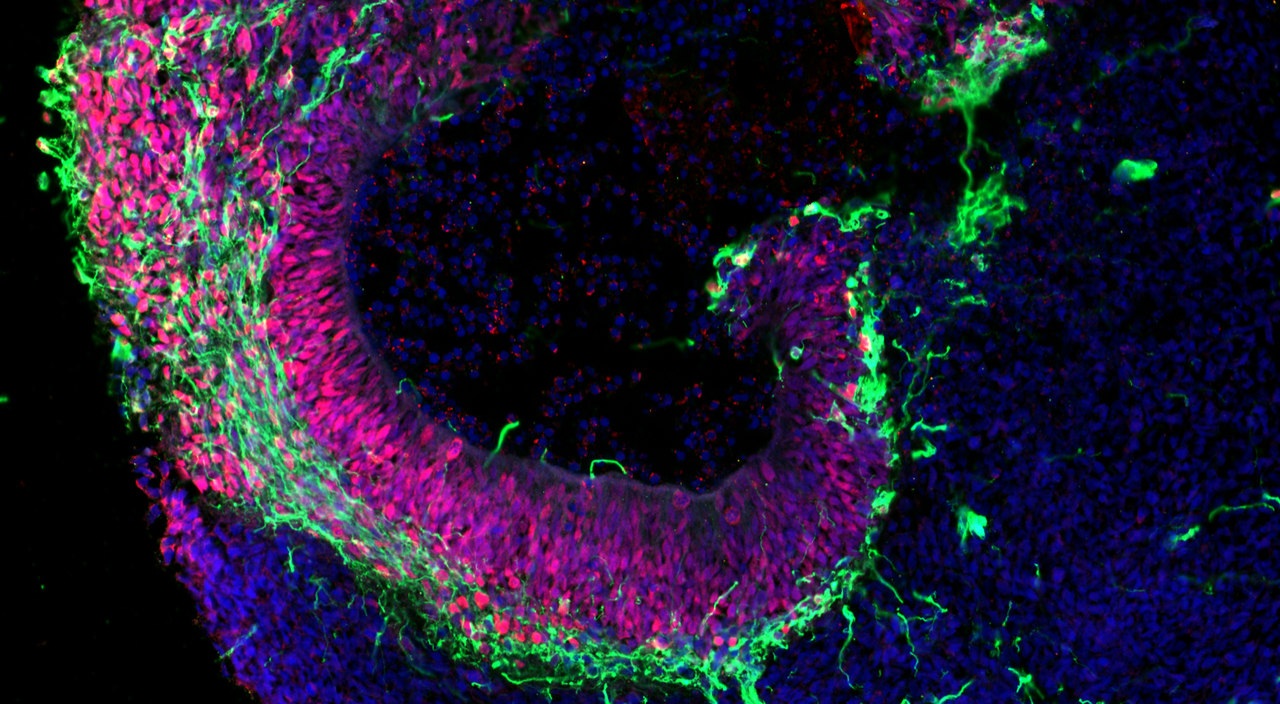 Image showing sections of cerebral brain organoids derived from pluripotent stem cells. via Agnieszka Rybak-Wolf, MDC/LifeTime