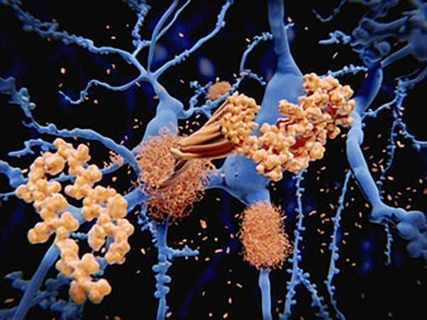 In the Alzheimer's disease brain, the amyloid beta peptide clumps together to form hardened plaques between nerve cells.